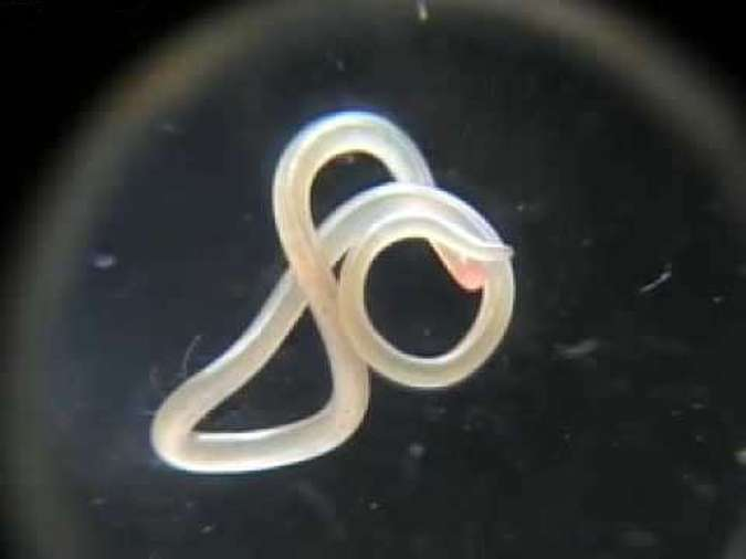 Imagem do Ascaris lumbricoides(foto: Internet)